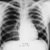 Pneumonic_plague_1